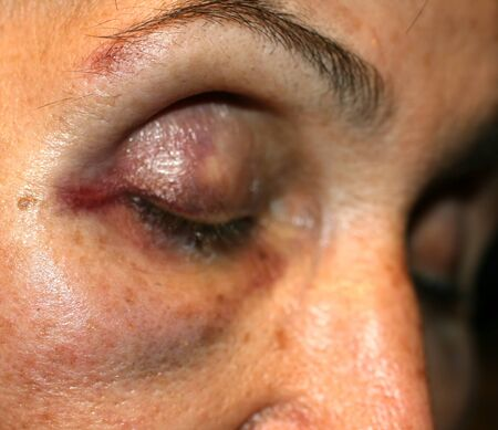 A bruise near the eye. Hematoma on the face from a blow. Eye injury.