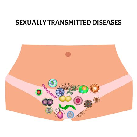 Viral and bacterial infections. Sexually transmitted diseases. Infographics. Vector illustration on isolated background. Illustration