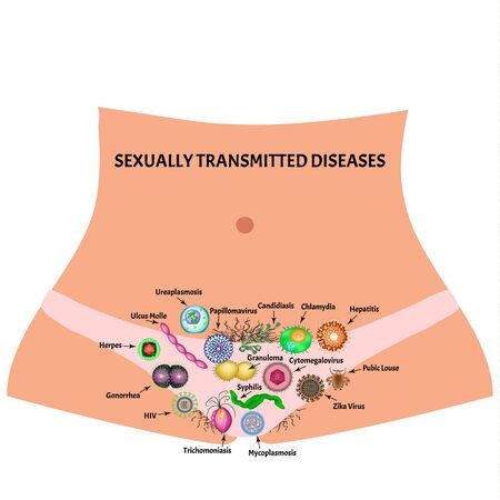 Viral and bacterial infections. Sexually transmitted diseases. Infographics. Vector illustration on isolated background. Vektorové ilustrace