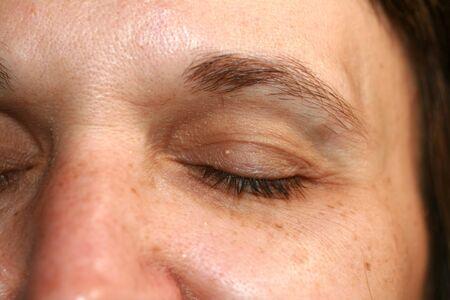 Wrinkles around the eye. Wrinkles on woman face skin.
