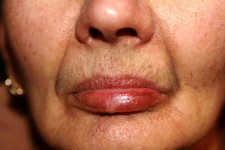 Weathered lips. Fever on the lip. Herpes.