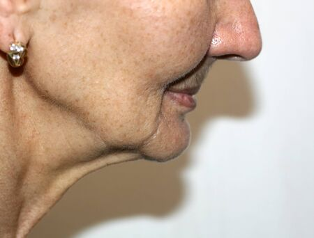 Nasolabial wrinkles. Wrinkles on the skin of the face of the neck. Flabby cheeks and neck.
