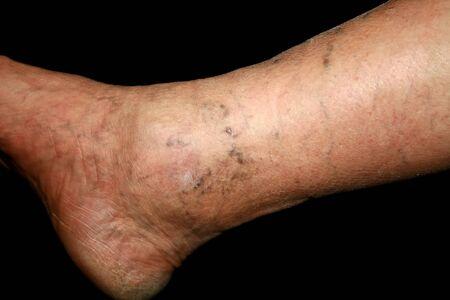 Leg. Varicose veins. Phlebeurysm Thrombophlebitis leg in veins Banco de Imagens