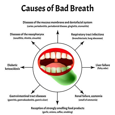 Causes of bad breath. Halitosis. The structure of the teeth and oral cavity. Diseases of the teeth. Infographics. Vector illustration on isolated background.