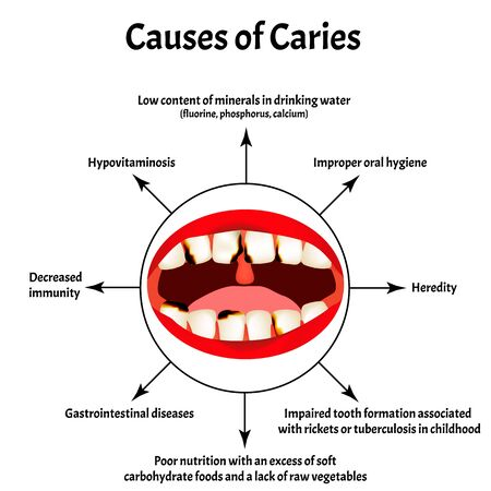 Causes of caries. Smell from the mouth. Halitosis. The structure of the teeth and oral cavity. Diseases of the teeth. Infographics. Vector illustration on isolated background.