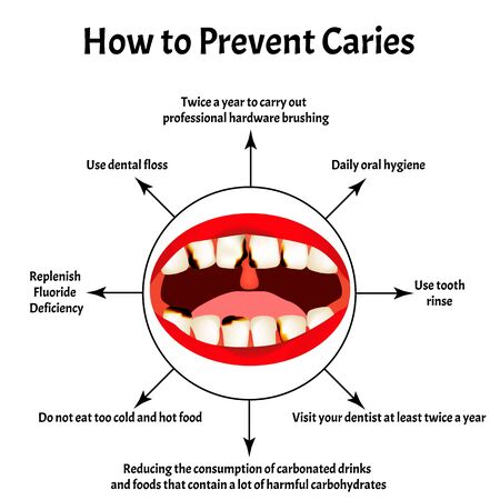 How to prevent the appearance of caries. Bad breath. Halitosis. The structure of the teeth and oral cavity with caries. Diseases of the teeth. Infographics. Vector illustration on isolated background.