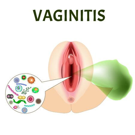 Vaginitis. Female genital inflammation. The structure of the reproductive organs. Vaginitis vaginal dysbiosis. Bad smell. Infographics. Vector illustration on isolated background.