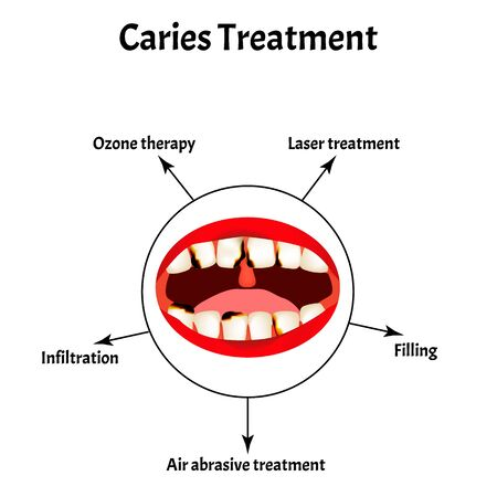 Caries treatment. Bad breath. Halitosis. The structure of the teeth and oral cavity with caries. Diseases of the teeth. Infographics. Vector illustration on isolated background.