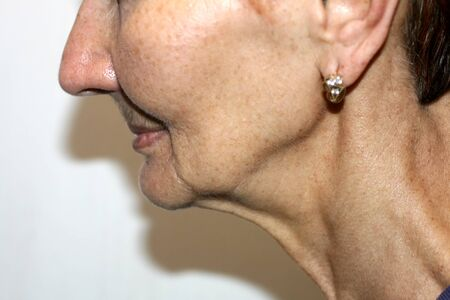 Nasolabial wrinkles. Wrinkles on the skin of the face of the neck. Flabby cheeks and neck 版權商用圖片