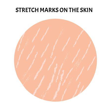 Stretch marks on the skin. Background stretch marks on the skin. Infographics. Vector illustration Ilustração