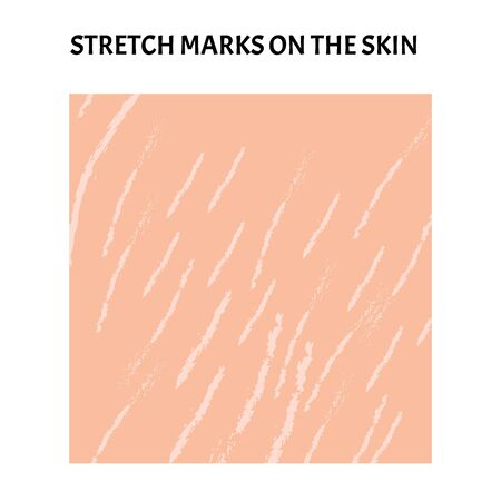 Stretch marks on the skin. Background stretch marks on the skin. Infographics. Vector illustration