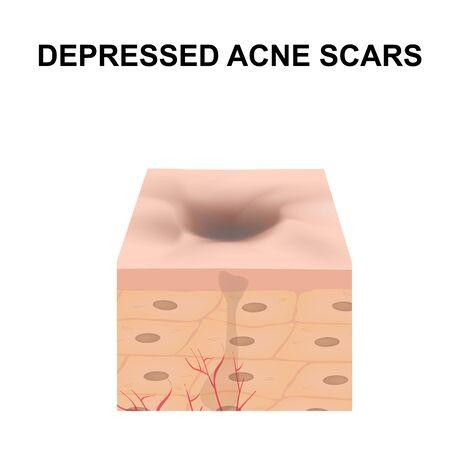 Cicatrices atrophiques. Cicatrice d'acné. La structure anatomique de la peau avec l'acné. Illustration vectorielle sur fond isolé.