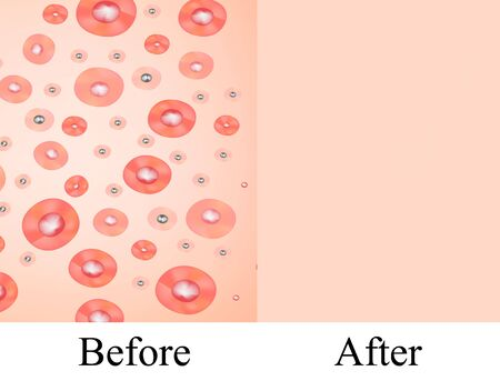 Texture, inflamed pimples and acne. Before After acne cysts. Skin background. Infographics. Vector illustration on isolated background. Vettoriali
