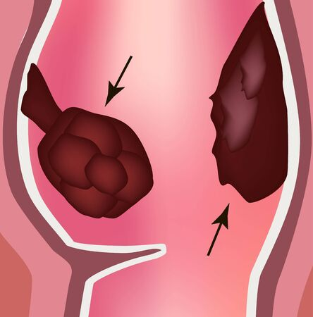 Polyps in the rectum. The structure of the rectum of the intestine. Types of polyps in the colon. Infographics. Vector illustration on isolated background.