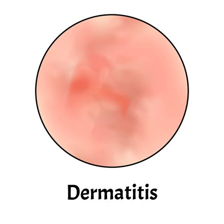 Skin inflammation. Dermatitis skin. Infographics. Vector illustration on isolated background