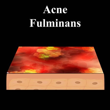 Cyst acne. furuncle Acne on the skin cysts and pimples. Dermatological and cosmetic inflammatory diseases on the skin of the face. Infographics. Vector illustration on isolated background
