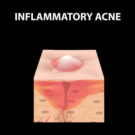 Cyst acne. furuncle Acne on the skin cysts and pimples. Dermatological and cosmetic inflammatory diseases on the skin of the face. Infographics. Vector illustration on isolated background.