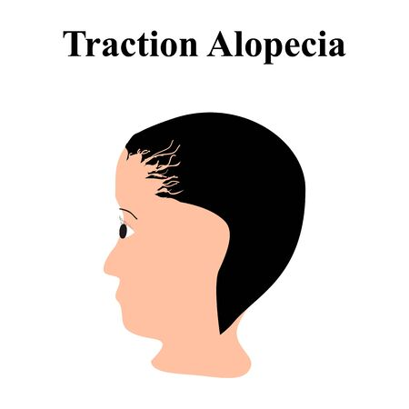 Alopecia hair. Baldness of hair on the head. Traction alopecia. Infographics. Vector illustration on isolated background