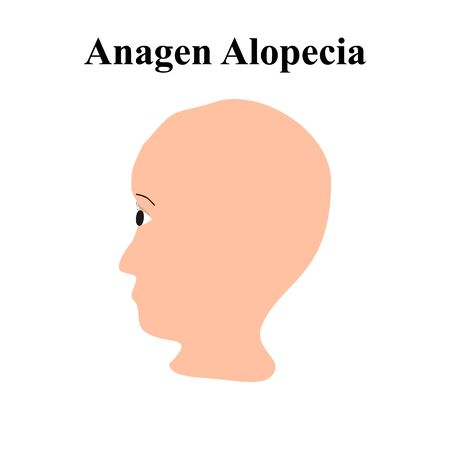 Alopecia hair. Baldness of hair on the head. Anagen Alopecia. Infographics. Vector illustration on isolated background.