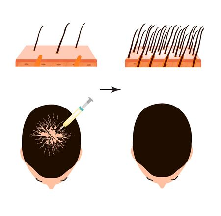 Treatment of alopecia. Bald spot, baldness, Alopecia mesotherapy. Infographics. Vector illustration on isolated background.