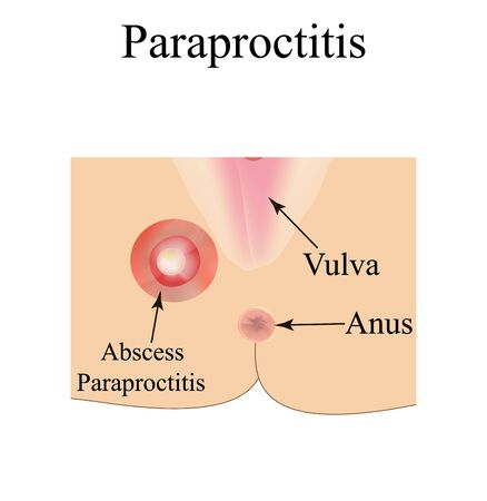 Paraproctitis. Abscess in the perineum. Inflammation paraproctitis. Infographics. Vector illustration on isolated background.