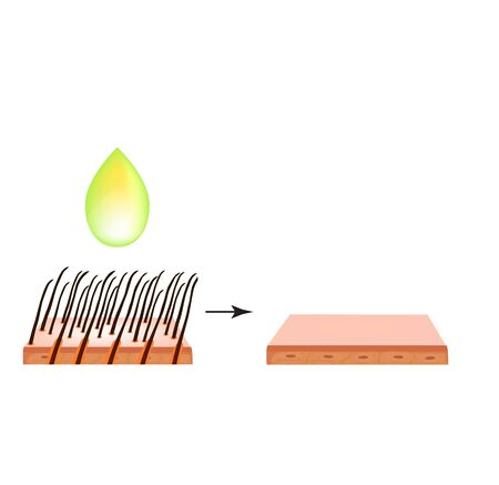 Hair depilation. Hair removal. Infographics. Vector illustration on isolated background