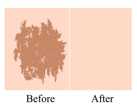 Pigmentation on the skin background. A pigmented spot on the skin of the face. Before and after treatment. Vector illustration