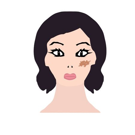 Pigmentation on the skin. A pigmented spot on the skin of the face. Vector illustration