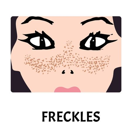 Freckles on the face. Pigmentation on the skin. A pigmented spot on the skin of the face. Vector illustration.