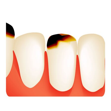 Dental caries. tooth decay. Caries infographics. Vector illustration on isolated background