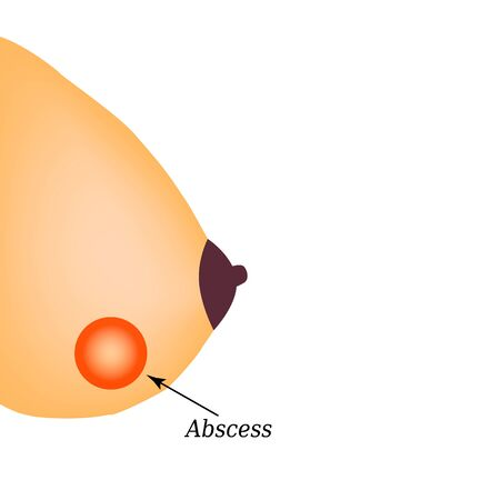 Abscess in the mammary gland. World Breast Cancer Day. Vector illustration on isolated background