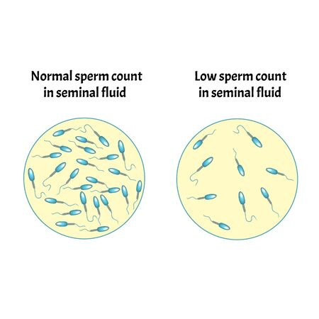 Low sperm count in seminal fluid. Low abundance of sperm in the ejaculate. Male infertility Oligospermia. Spermogram. pathology types. Sperm defects. structure of the sperm. Infographics Vector.