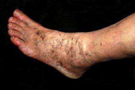 Leg. Varicose veins. Phlebeurysm Thrombophlebitis leg in veins Banque d'images