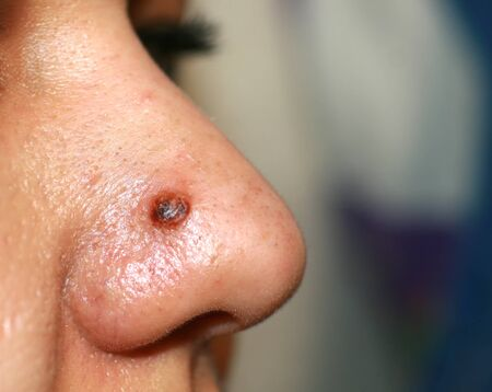 Inflamed pimple on nose. Cyst Acne. Acne on the skin. Stock Photo