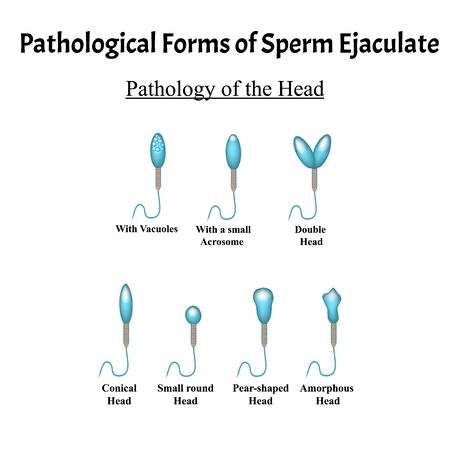 Pathological forms of sperm in the ejaculate. Male infertility Oligospermia. Spermogram. Pathology of the head. Sperm defects. Infographics. Vector illustration on isolated background.