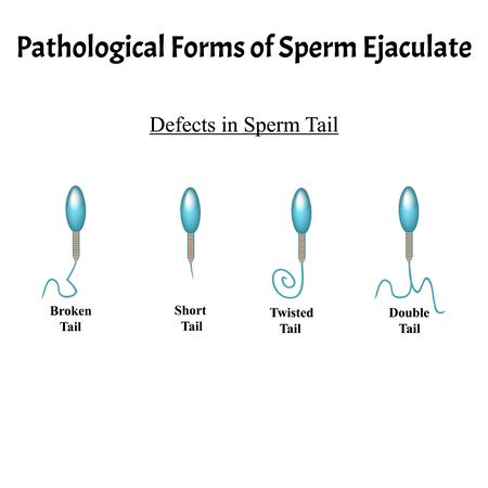 Pathological forms of sperm in the ejaculate. Male infertility Oligospermia. Spermogram. Pathology of the tail. Sperm defects. Infographics. Vector illustration on isolated background.