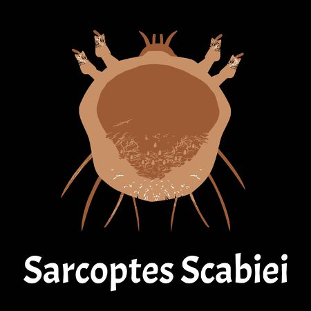 Sarcoptes scabiei. scabies. Sexually transmitted disease. Infographics. illustration on isolated background. Ilustração
