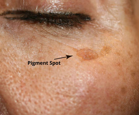 Brown spot on the skin of the face. Pigmentation on the skin