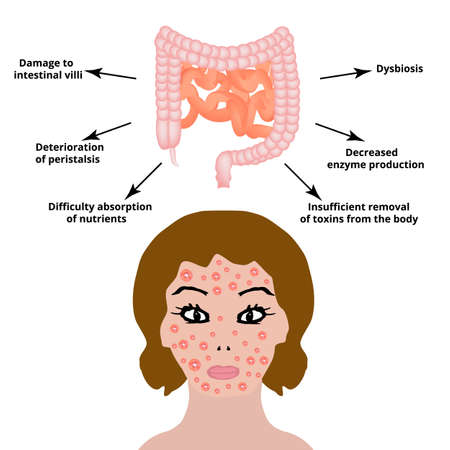 The anatomical structure of the intestine. Bowel diseases affect the skin. Skin inflammation and acne. Vector illustration on isolated background