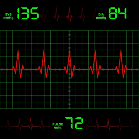 monitore: Herzschlag Illustration