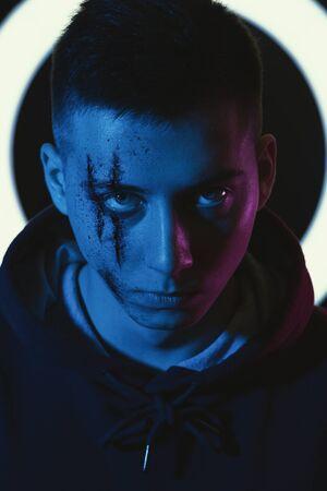 Adolescent avec des blessures sur le visage. Intimidation et harcèlement.
