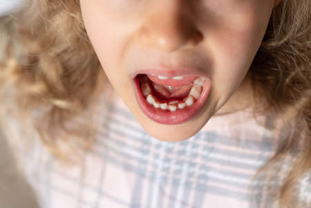 preschooler girl shows new tooth. Teeth grow in two rows