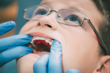 Dentist checking mobile orthodontic appliance for dental correction to the child patient. Close-up. Real People.