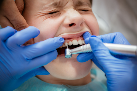 Beautiful scared little girl at visit in the dentist office. Dentist repair her teeth. Real people. Stock Photo