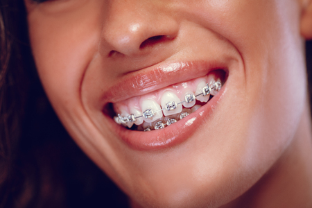 Close-up of a womans white teeth with braces and smile. Zdjęcie Seryjne