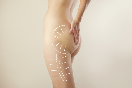 female figure highlighted with arrow symbols  liposuction marks  anti-cellulite therapy 版權商用圖片