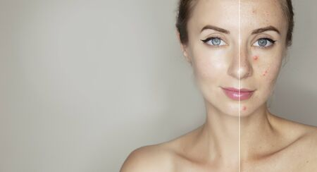 pimpled skin  skin treatment products for women