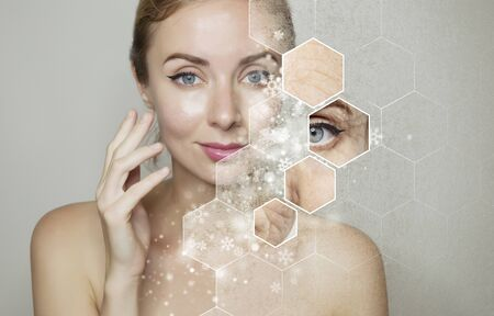 beautiful woman`s face over grey background with snow and snowflakes. Cryolifting beauty procedure concept.