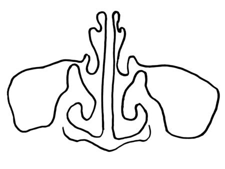 vector outline drawing of maxillary sinus (nose) suffering from coronavirus or covid-19 virus. Medical design template