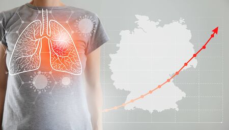 Global virus and world virus infection visualisation of infected lungs on woman body with dangerous contagious bacteria infecting different populations as Asia Spain Italy Grmany and America on a grey background. Foto de archivo